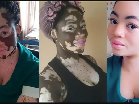 See more photos of how the black Skin of Nurse got wiped off completely