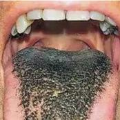 What Do You Think Is The Cause  Of Bad Breath?