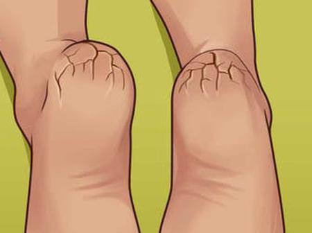 With This Essential Trick You Never Have To Worry About Dry, Cracked Or Itchy Feet Ever Again