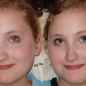 هذا هو سبب احمرار العين في الصور.. مفاجأة للجميع