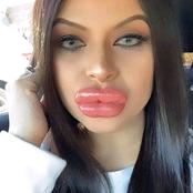 A Lady Who Had Surgery To Increase Her Lips Size Goes Wrong - See Pictures