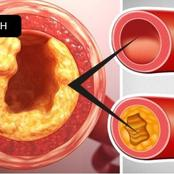 7 Foods That May Help Prevent Clogged Arteries