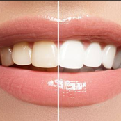 3 Habits You Should Develop To Always Keep Your Teeth White And Healthy