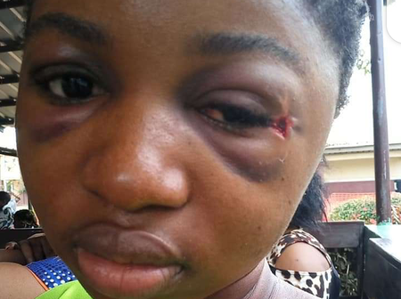 Remember The Lady Who Survived A Bullet In Her Head For 5 Day? Check Out Her Health Condition Now