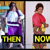 Remember The Woman Who Used To Carry Oxygen Tanks To Survive?- See Her Recent Pictures.
