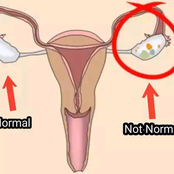 You Are at Risk of Suffering From Ovarian Cancer if You Are Using These Things