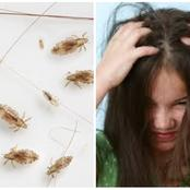 Stop Using Insecticide. This Is The Most Effective Way to Kill Hair Lice And Nits at Home.