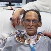 Meet The First Man To Ever Live On Earth Without A Human Heart[Photos]