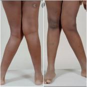 If You See Anybody Living With Knocked Knees Or K-Legs, This Is What It Actually Means
