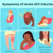 Here are the signs of Acute HIV infection on picture