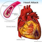Heart Ulcer Kills, Reduce Your Intake Of These 4 Things