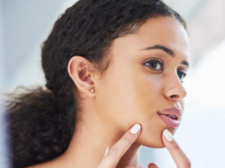 6 Easy Ways To Get Rid Of Pimples