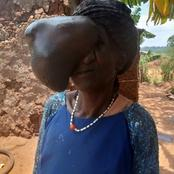 Doctors Successfully Remove A 3Kg Growth From A Woman's Face After 21 Years