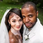 """""""She's Beautiful"""" - See Cute Photos Of A Bride With Vitiligo That Got Reactions Online"""