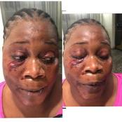 See What Lady Allegedly Did To Her Neighbour Who Tried To Report Her (Screenshot)