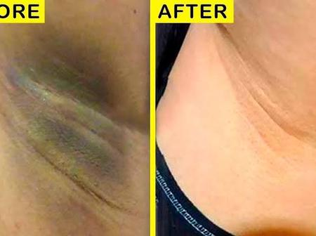 Cheap and easy way to lighten dark armpits at home.