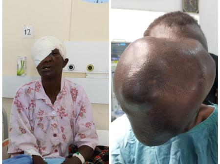 Moi Teaching and Referral Hospital Reveals The Exact Cost Of Beatrice Makokha's Operation