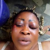 Woman Seeks Justice After 4 Of Her Male Neighbours Alledgedlly Beat Her Up
