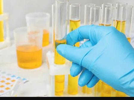 This Is Why Your URINE Is Always Yellow, Read To Find Out