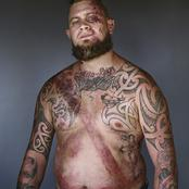 Portrait Of Car Crash Survivor Showing The Lifesaving Effect Of A Seat Belt
