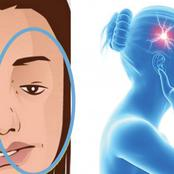 AVC ( Accident Vasculaire et Cérébral) :  voici 3 des symptômes à connaître par cœur.