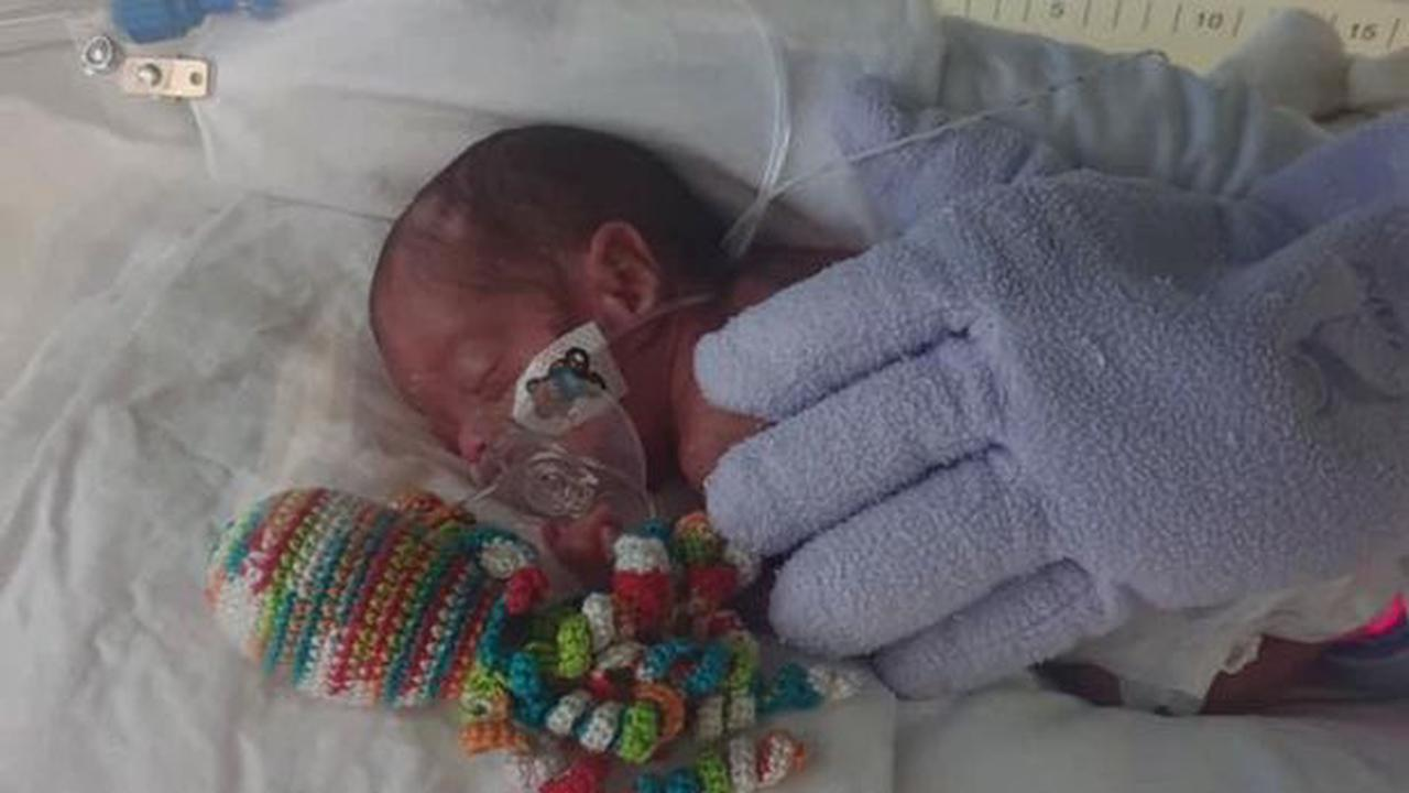 Scots twins born looking like 'tiny frogs' and weighing only 1lb each