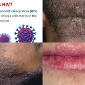 Signs That Your Partner Might Have HIV/STDs And Not Telling You - opinion
