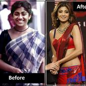 11 Bollywood Actress Who Have Allegedly Undergone Plastic Transformation