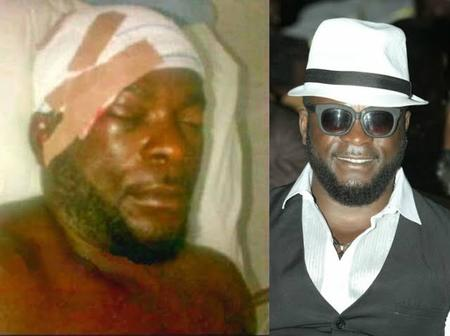 6 Years After Popular Nollywood Actor Broke His Skull While Acting, See His Recent Pictures