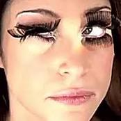 Eyelashes Gone Wrong! Be careful of what you put on your eyes!
