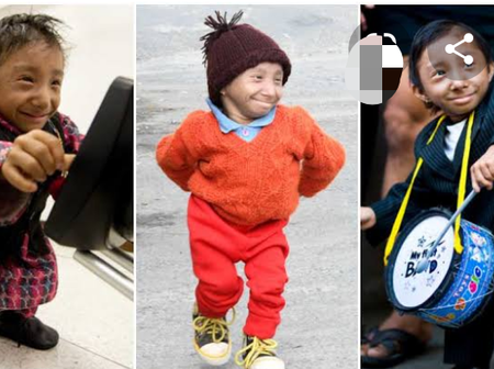 See Pictures Of The Shortest Man In The World Before He Died