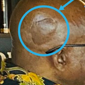 The Strange Thing On the Head Of Jacob Zuma, While He Was Talking to Minister Bheki- Man Reveals