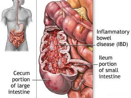 Are you bothered by Ulcerative Colitis? Try these home made remedies.