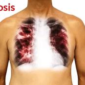 Symptoms Of Tuberculosis And Its Diagnosis
