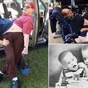 Meet The Oldest Conjoined Twins With Two Bodies and One Stomach!