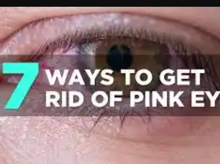 Home remedy on how to cure pink eye naturally