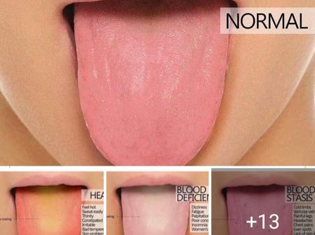 What color is your tongue? - Read what your tongue color says about your health
