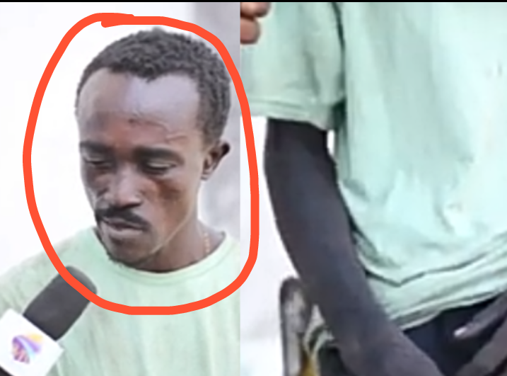 b36ca71265b8445481d7962cbf4a16f3?quality=uhq&resize=720 - I haven't been able to bath for 1 year now - Ghetto Drug addict reveals