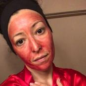 Using period blood as a face mask for acne and skin renewal.