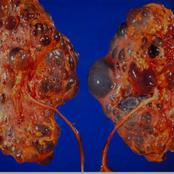 Kidney and Prevention
