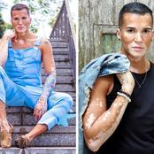 This 37-year-old model boldly revealed his face after covering his vitiligo with makeup for 10 years