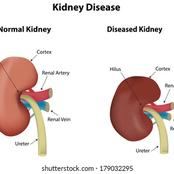 If You Don't Want To Suffer Kidney Failure, Reduce Your Intake Of These 3 Things