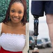 See What Nigerians Did 3 Hours After This Girl Asked For Over A Million Naira To Buy Prosthetics Leg