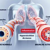 L'asthme, une maladie difficile à supporter