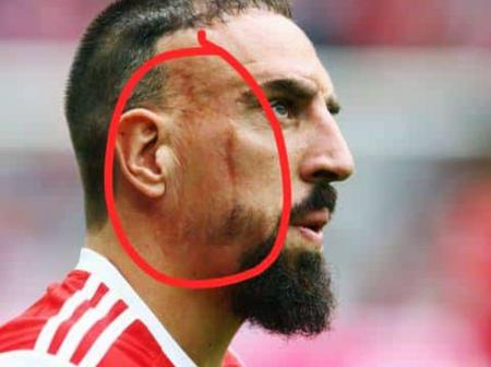 Touching: See How Franck Ribbery Got This Scar On His Face.