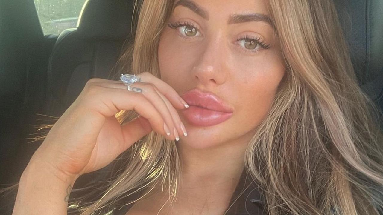 Chloe Ferry exposes lacy bra as she wears sexy lingerie to pose in her car