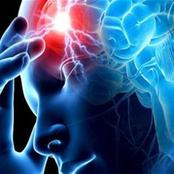 تحذير. . إذا ظهرت عليك تلك الأعراض قد تكون السكتة الدماغية قريبة منك وأنت بحاجة للتدخل العاجل