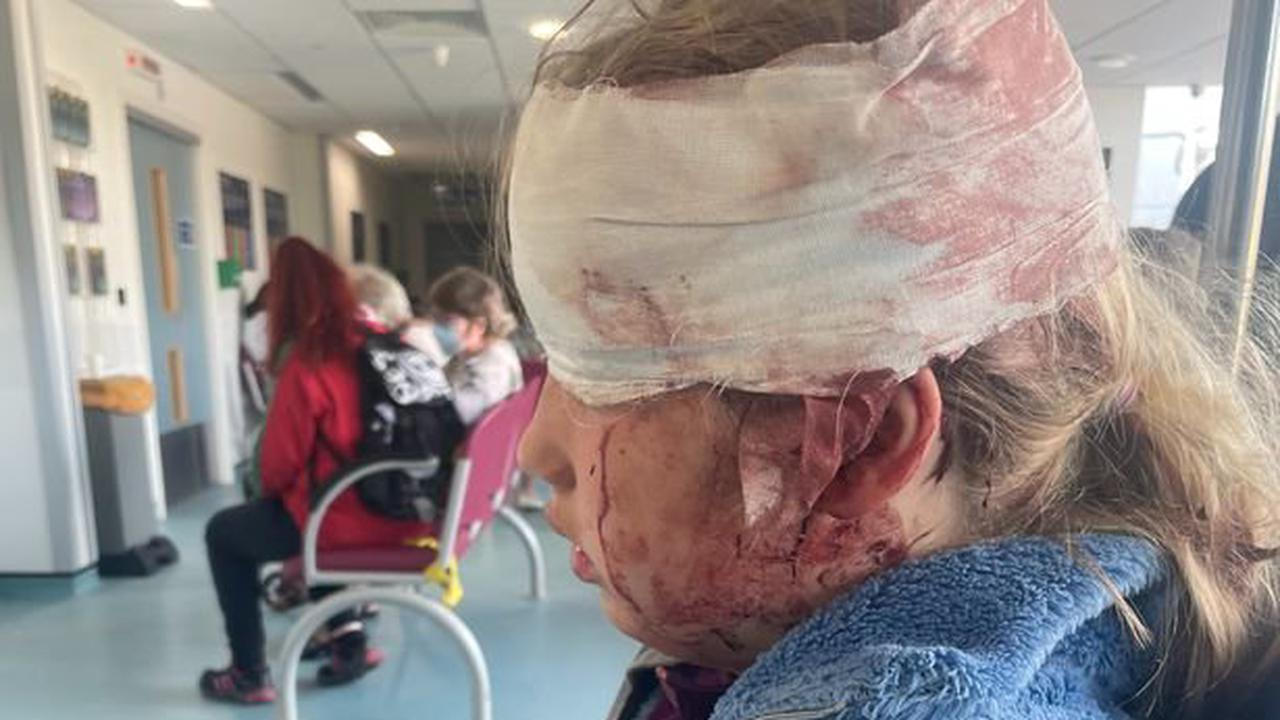 Girl, 10, knocked unconscious in cycling accident after losing control of her bike