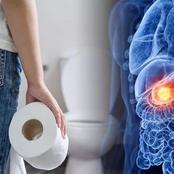 Look Inside Your Toilet Before Flushing. What You See Could Be A Sign Of Your Pancreatic Health