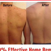 Home remedy for chest and back pimples